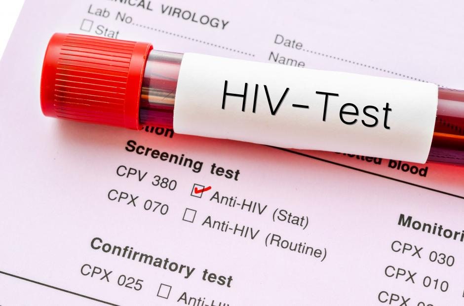HIV-Test result and test bottle